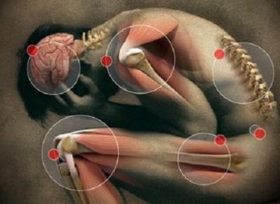 Médula Espinal (Lesión Medular)